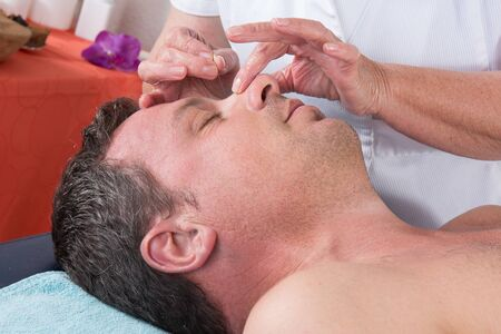 acupuncturist: Man in an acupuncture therapy at the health spa