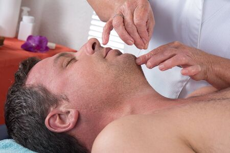 acupuncture: Man in an acupuncture therapy at the health spa
