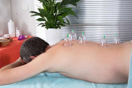 acupuntura china: Masaje Alternativa, un macho que tiene una terapia china para curar