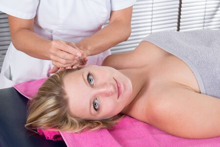 acupuncture: Acupuncture treatment on young attractive female patient