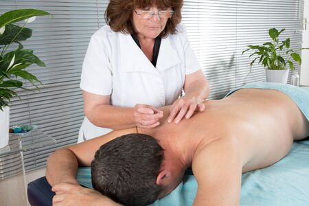 acupuncture: Man in an acupuncture therapy in a Spa center