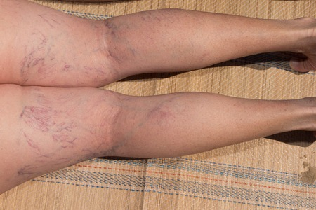 ulceration: Painful varicose and spider veins on womans legs