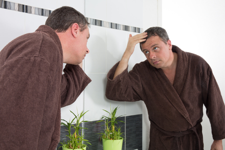 beautycare: Handsome man in bathrobe and hair loss issue
