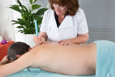 moxa: Female therapist in chinese medicine working on the back of a  man