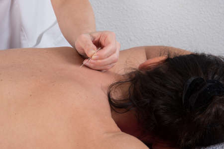 respite: The woman on acupuncture treatment, a close up
