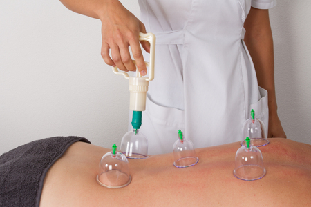 cupping glass cupping: Detail of an acupuncture therapist removing a glass globe in a fire cupping procedure Stock Photo