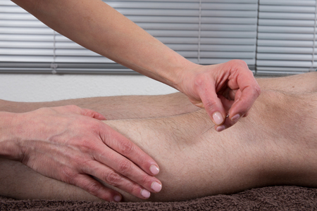 female therapist: Female therapist holding a needle in an acupuncture therapy