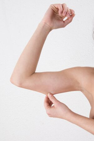 unhealthy lifestyle: Woman showing loose upper arm thanks to unhealthy lifestyle.