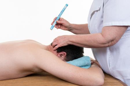 TCM Traditional Chinese Medicine, back applying moxa stick Stock Photo