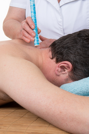 moxibustion: Acupuncture therapist using moxibustion to heat up an area on a patients back