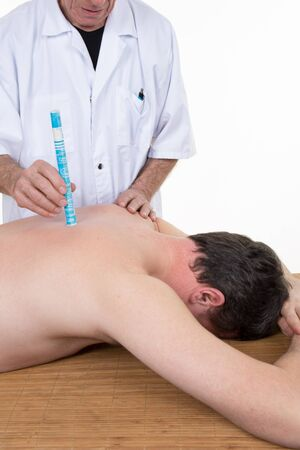 moxibustion: male therapist in chinese medicine working on the back of a  man