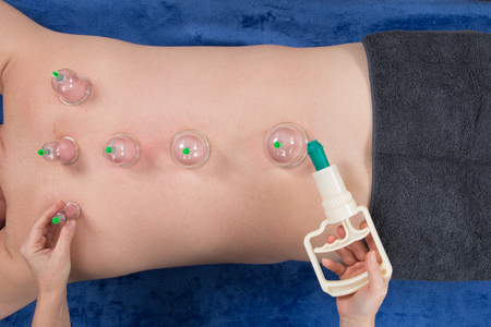 soreness: Man laying on chest with cupping treatment on back