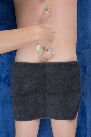 cupping glass cupping: Acupuncture therapist removing a fire cupping glass from the back of a young woman Stock Photo