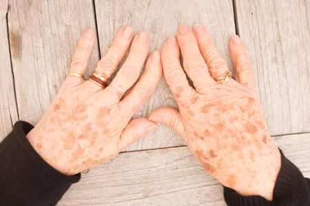 aging woman: Sign of aging - plenty of a freckles on woman hand