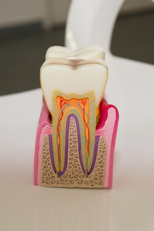 dentin: Human tooth cross-section at the dentist room