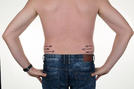 correction lines: Close-up of mans back with correction lines for abdominal surgery