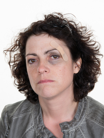 beaten: Abused woman looking at the camera with a sad expression of despair Stock Photo