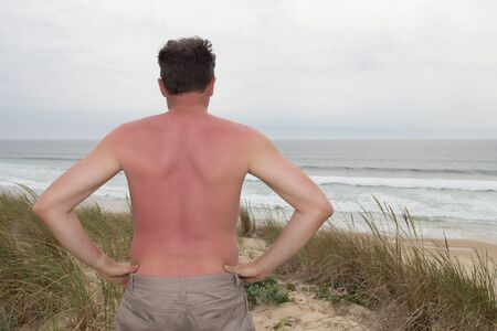unprotected: Sunburned male back red back at the beach