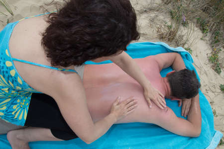 suncare: Woman applying sunblock lotion on male back at a beach Stock Photo