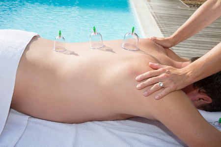 Multiple vacuum cup of medical cupping therapy on man body Bekam Hijamah is traditional treatment Stock Photo
