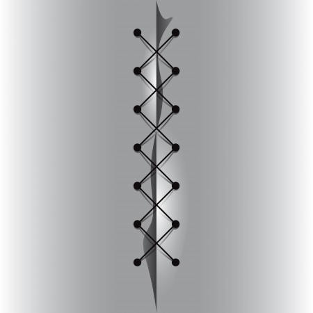 suture: Cross linked thread seam