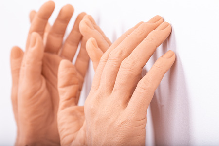 group silicone prosthesis hands, medicine pink implants for person