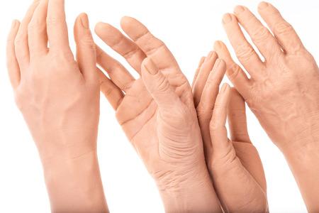 manos de prótesis de silicona de grupo, implantes de medicina rosa para persona Foto de archivo
