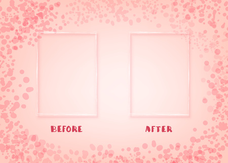Before and After screen. Comparison banner with empty space. Template for graphic design. Vector illustration. Stock Illustratie