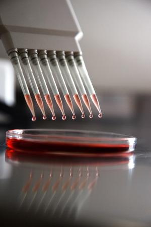 control de calidad: Gotas cayendo pipeta en el laboratorio.