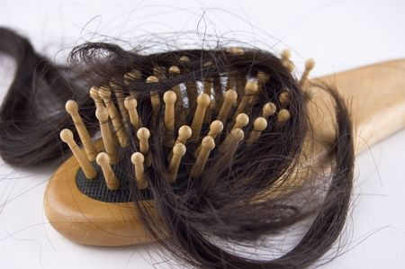 Problema de pérdida de cabello  Foto de archivo - 2831513
