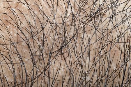 calvicie: Close up de cabello humano