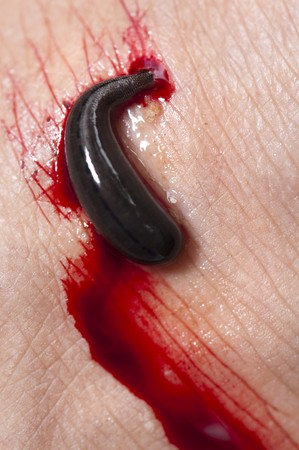 sanguijuela: Leech succión sangre de una pierna en la selva tropical, Malasia, Asia.