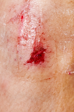 knees up: Close up on an adult scraped knee after fell down. Stock Photo