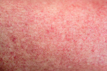Close up human skin with dengue fever red rashes
