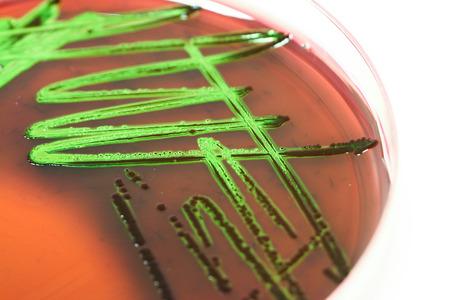bacterial: Coltura batterica Microbiologia Archivio Fotografico