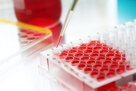 Closeup of sample being filled into well plate in lab