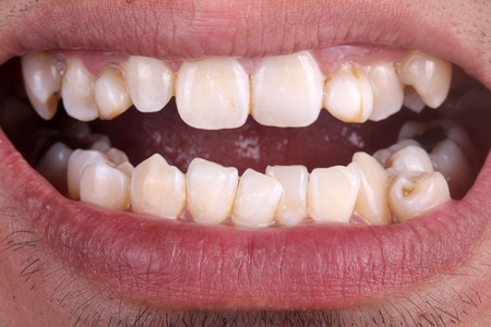 crooked teeth: Mouth with crooked teeth Stock Photo