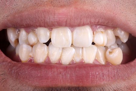 Mouth with crooked teeth Foto de archivo