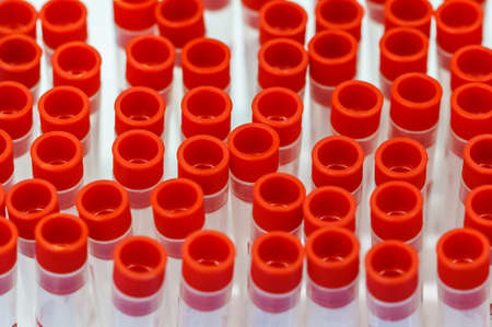 sample tray: Blood samples for the annual health check