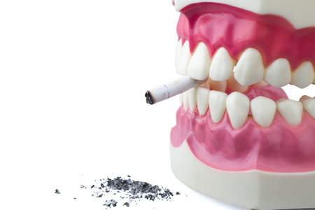 Dental mold biting and cigarette Stock Photo