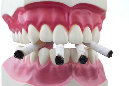 Dental mold biting and cigarettes Stock Photo