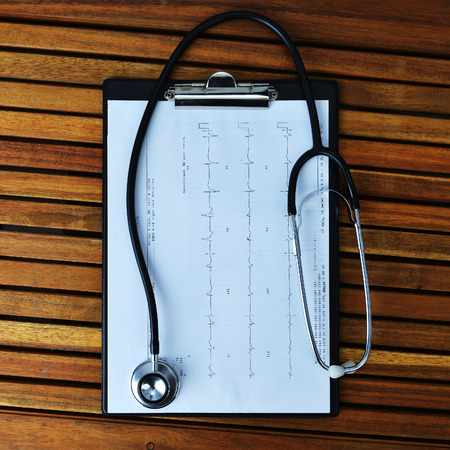 printout: stethoscope on printout of heart monitor -blue tint on wooden background Stock Photo
