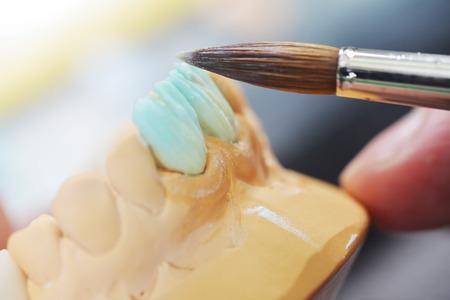 dentier: technicien dentaire travaille sur de fausses dents. table avec des outils dentaires.