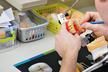 prosthodontics: dental technician working on false teeth. table with dental tools. Stock Photo