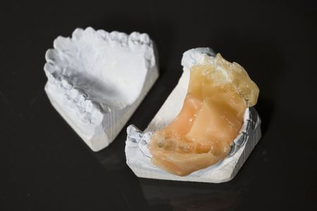Gypsum's invert model of tooth for artificial tooth Stock Photo - 1066478