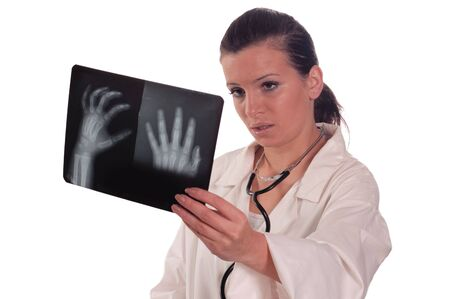 Doctor female holding x ray of hand photo