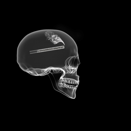Human Skull isolated on black with cigarette X-ray effect