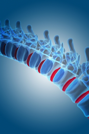 paralyze: 3d rendering of human spine
