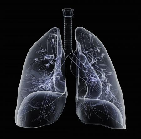 chest x ray: Bronchi e polmoni umani a vista a raggi x Archivio Fotografico