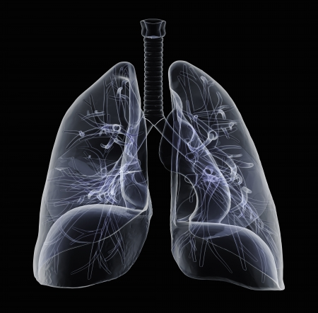 lung bronchus: Human lungs and bronchi in x-ray view
